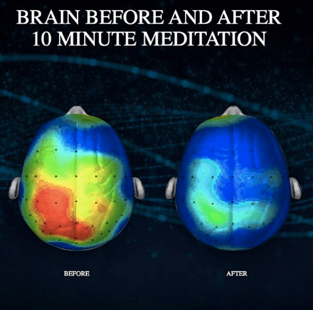 What does YOGA do to your BRAIN?